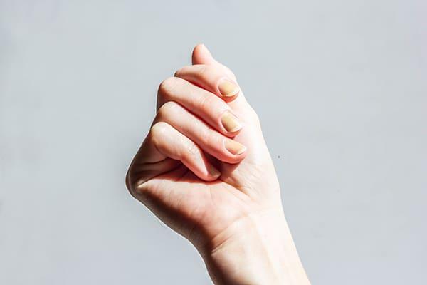 Почему пожелтели ногти