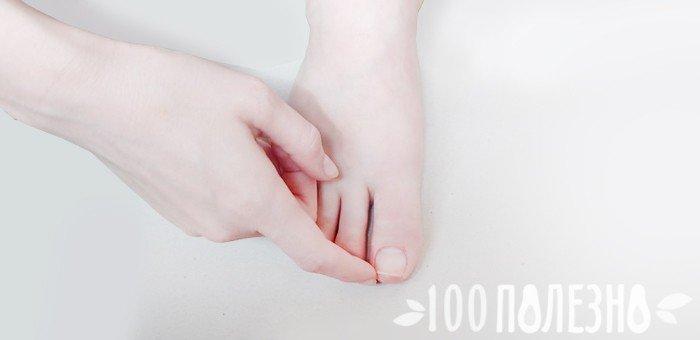 правильно подрезанный ноготь на большом пальце ноги