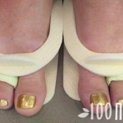 Как вылечить вросший ноготь без хирургического вмешательства – два простых способа